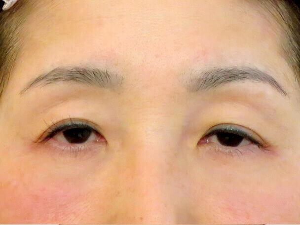 52歳 中度の後天性眼瞼下垂の術前写真