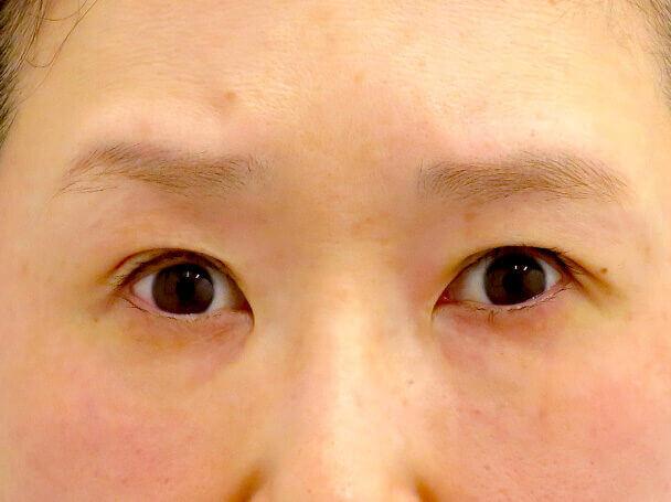 45歳 中度の後天性眼瞼下垂の術直後写真