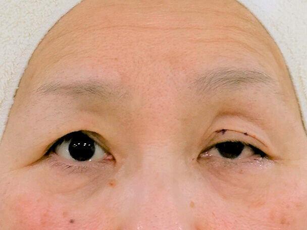 54歳重度後天性眼瞼下垂の右目術直後写真