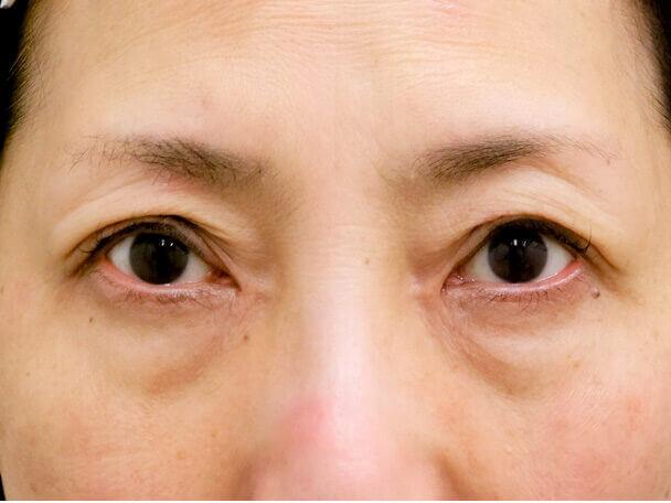 56歳 中度の後天性眼瞼下垂の術後30分写真