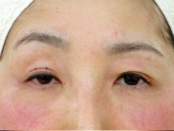 52歳 中度の後天性眼瞼下垂の術中(左目だけ術直後)日写真