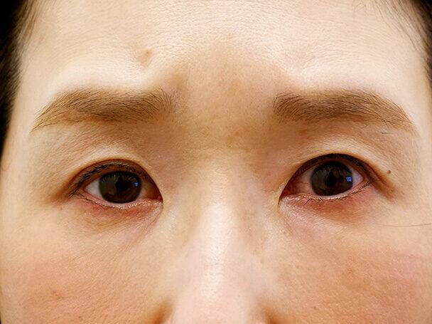45歳 中度の後天性眼瞼下垂の術後1ヶ月写真