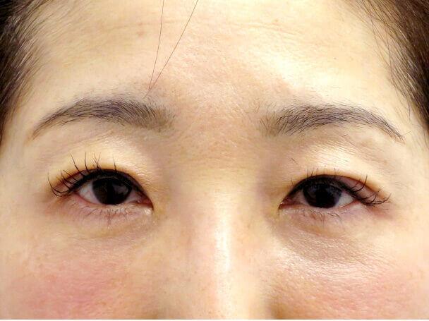 52歳 中度の後天性眼瞼下垂の術後5日写真