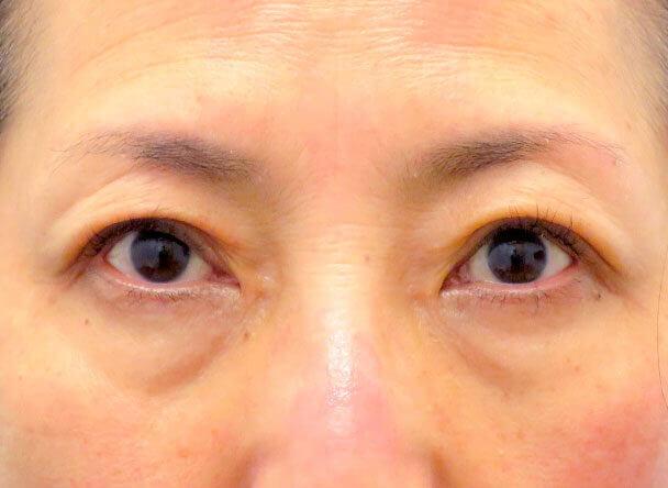 56歳 中度の後天性眼瞼下垂の術後6日写真