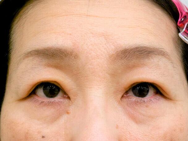 54歳重度後天性眼瞼下垂の術後6日写真