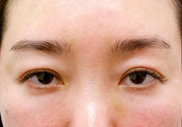 44歳中度の眼瞼下垂術前写真