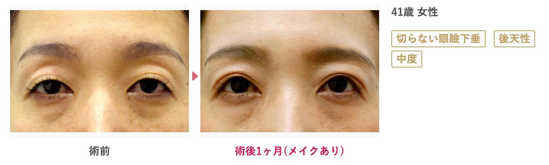 41歳 中度の後天性眼瞼下垂 症例写真