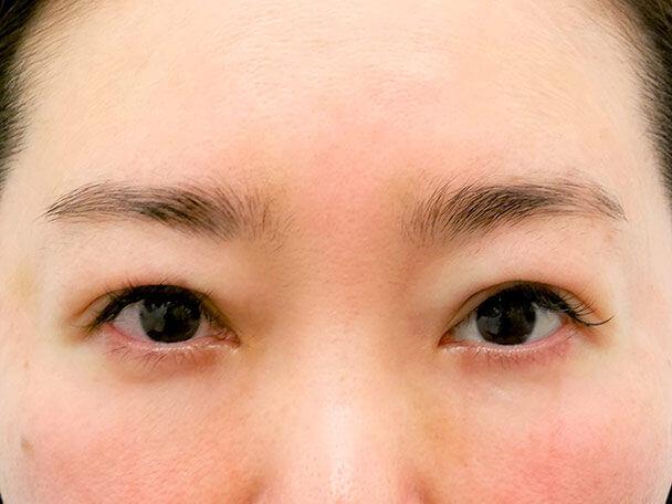 44歳中度の眼瞼下垂術直後写真