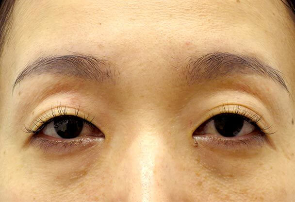 41歳 中度の後天性眼瞼下垂の術前写真