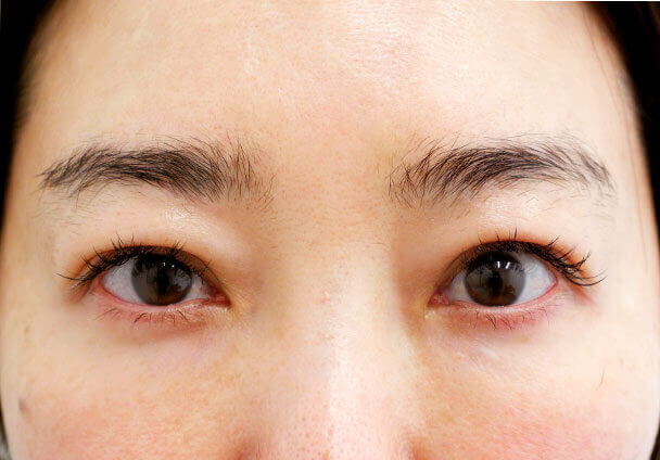 44歳中度の眼瞼下垂術後9日目写真