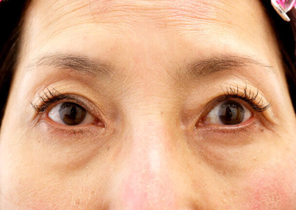 56歳 中度の後天性眼瞼下垂の術後1ヶ月写真