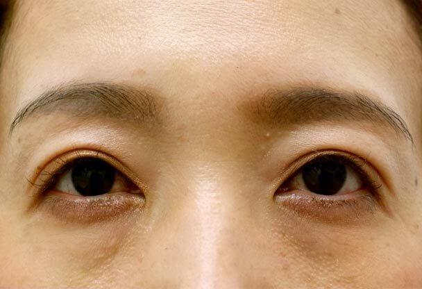 41歳 中度の後天性眼瞼下垂の術後1ヶ月後写真