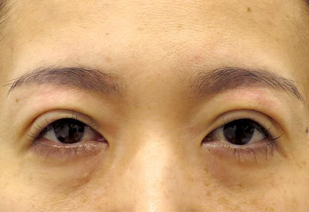41歳 中度の後天性眼瞼下垂の術直後写真