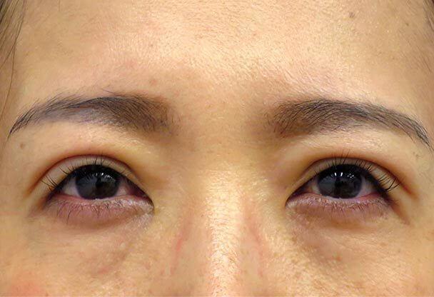 41歳 中度の後天性眼瞼下垂の術後5日後写真