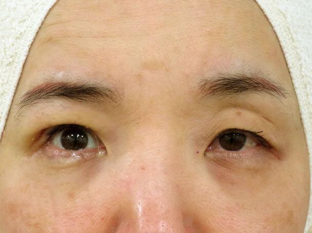 50歳中度の眼瞼下垂 術中右目のみ術直後写真