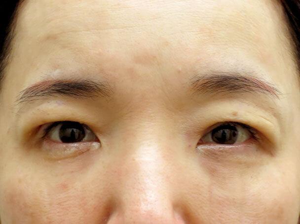 50歳中度の眼瞼下垂 術直後写真