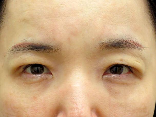 50歳中度の眼瞼下垂 術後30分写真
