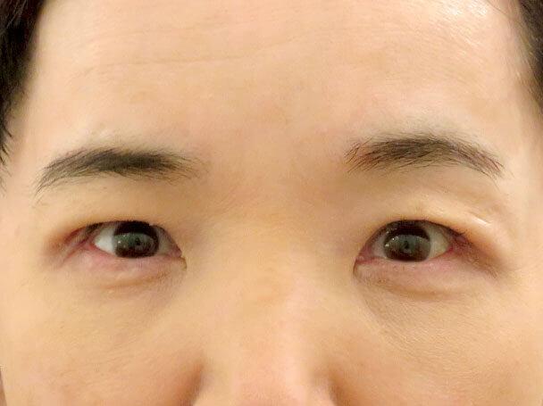 50歳中度の眼瞼下垂 術後6日写真