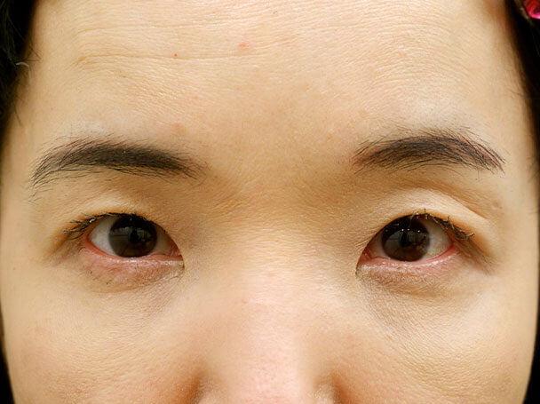 50歳中度の眼瞼下垂 術後1ヶ月(メイクあり)写真