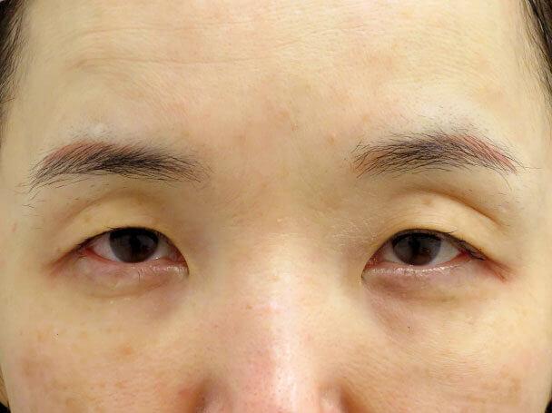 50歳中度の眼瞼下垂 術前写真