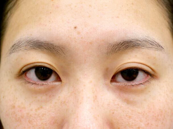26歳 左目 中度の後天性眼瞼下垂 術前写真