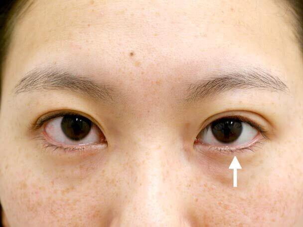 26歳 左目 中度の後天性眼瞼下垂 術直後写真
