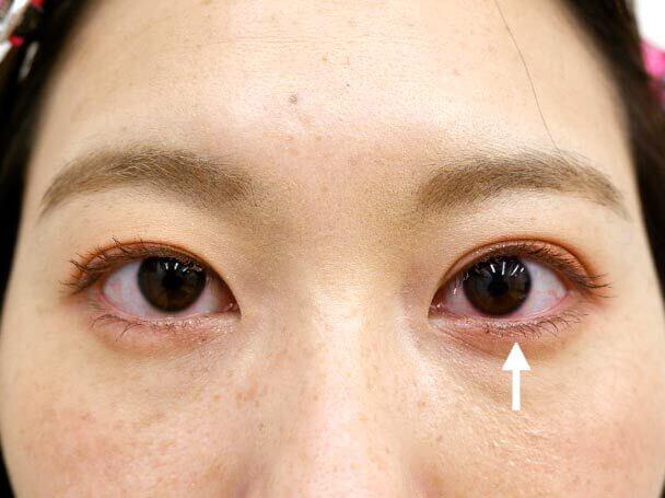 26歳 左目 中度の後天性眼瞼下垂 術後1ヶ月写真