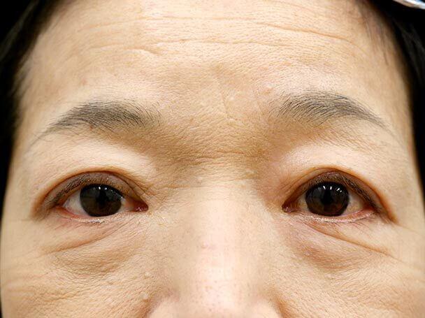 58歳 切開式眼瞼下垂術後1ヶ月(メイクあり)写真