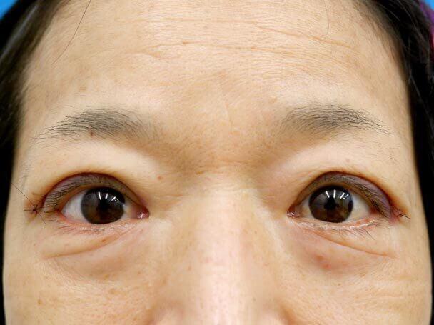 58歳 切開式眼瞼下垂術直後写真