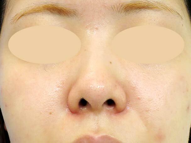 24歳 鼻中隔延長術前写真