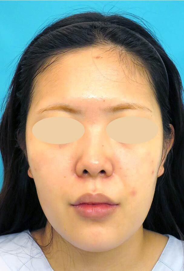 24歳 鼻中隔延長 全顔 術前写真