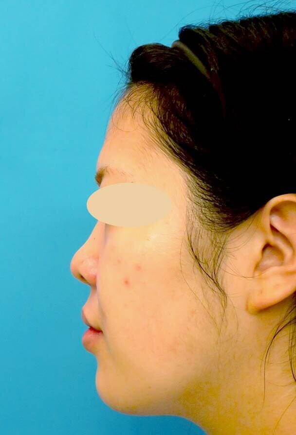 24歳 鼻中隔延長 真横 術前写真