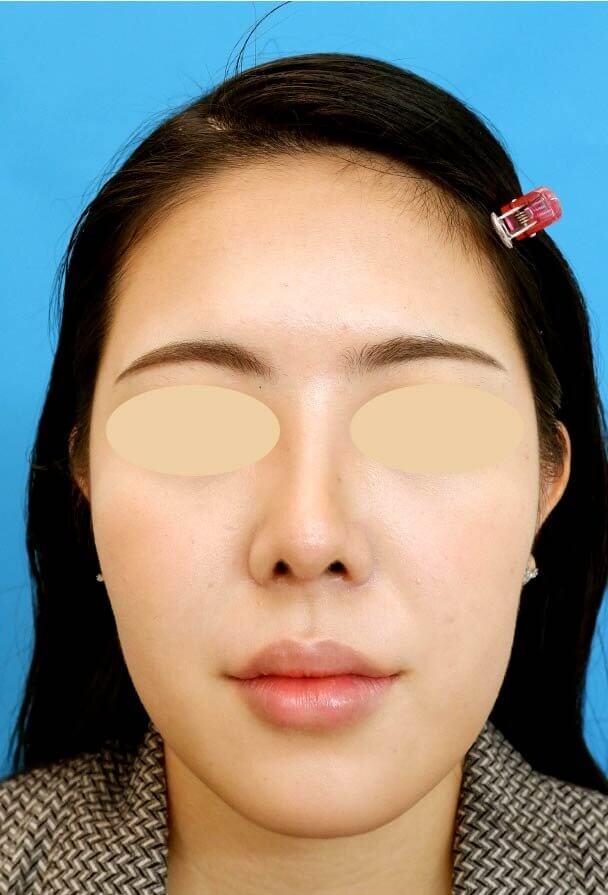 24歳 鼻中隔延長 全顔 術後2ヶ月写真