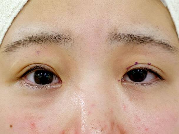 22歳 後天性眼瞼下垂 術中(右目だけ術直後)写真