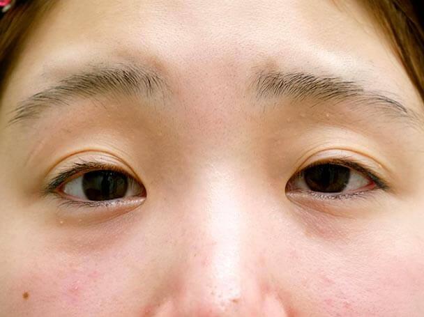 22歳 後天性眼瞼下垂 術前写真