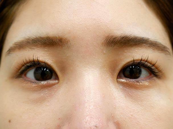 22歳 後天性眼瞼下垂 術後1ヶ月(メイクあり)写真