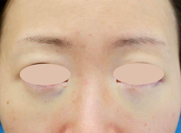 31歳 裏ハムラ法による目の下のクマ取り 術直後写真