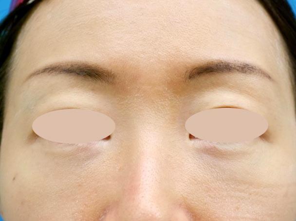 31歳 裏ハムラ法による目の下のクマ取り 術後3ヶ月写真