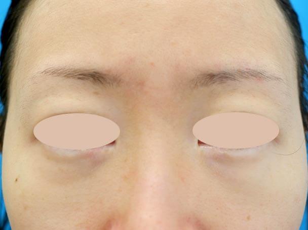 31歳 裏ハムラ法による目の下のクマ取り 術前写真